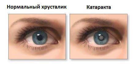 Лечение начальной катаракты - Clean View Clinic