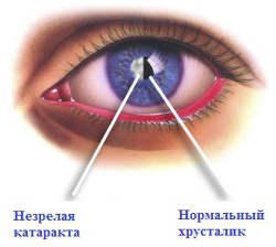 Лечение незрелой катаракты - Clean View Clinic